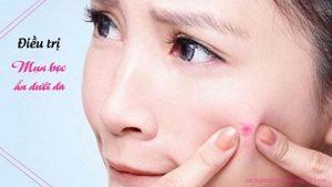 trị mụn bọc ẩn dưới da
