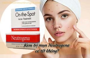 kem trị mụn Neutrogena