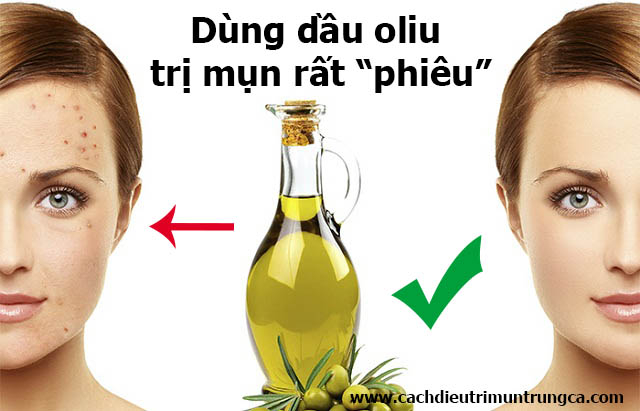 Dùng dầu oliu trị mụn