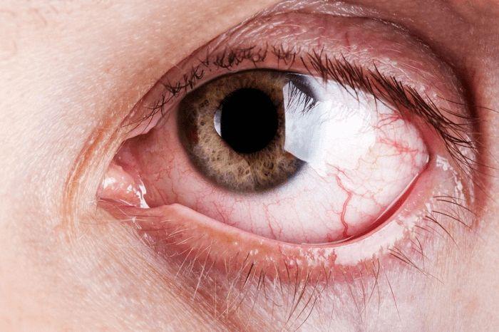Viêm kết mạc mắt gây mọc mụn lẹo ở mí mắt