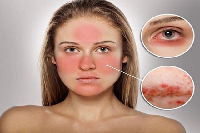 Da mặt bị mẩn đỏ và ngứa