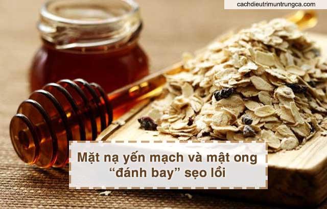 trị sẹo lồi do mụn bằng bột yến mạch và mật ong