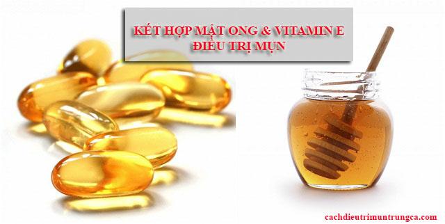 Cách điều trị mụn bằng vitamin E và mật ong