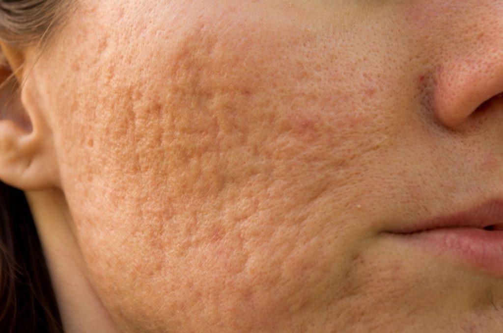 Bị sẹo lõm lâu năm có trị được không ?