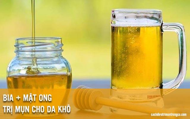 trị mụn bằng bia và mật ong
