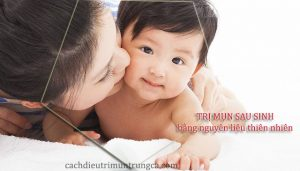 Trị mụn sau sinh hiệu quả chỉ bằng nguyên liệu tự nhiên