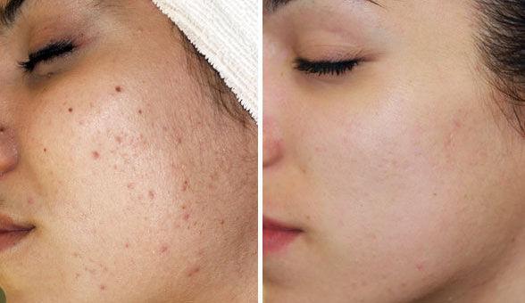 Hình ảnh bạn Nam trước và sau khi trị mụn