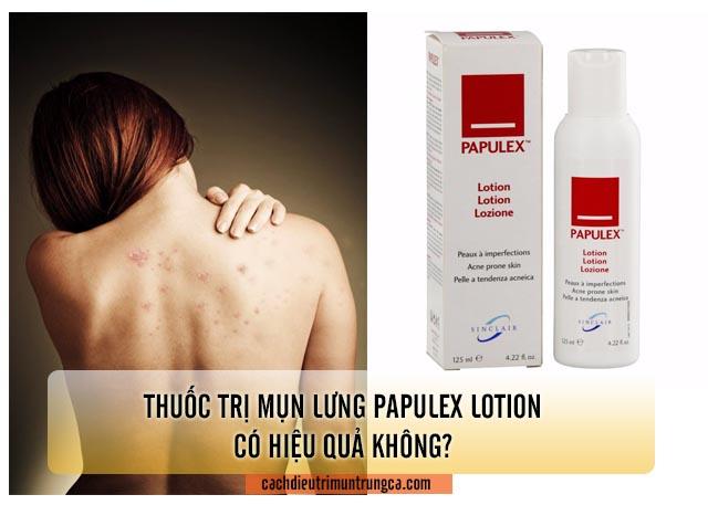 Thuốc trị mụn Papulex Lotion