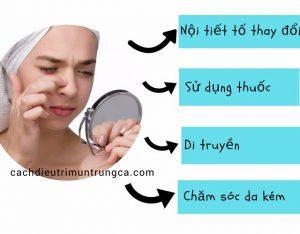 Nguyên nhân gây mụn đầu trắng