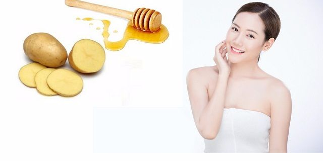 Trị mụn đầu trắng bằng khoai tây và mật ong