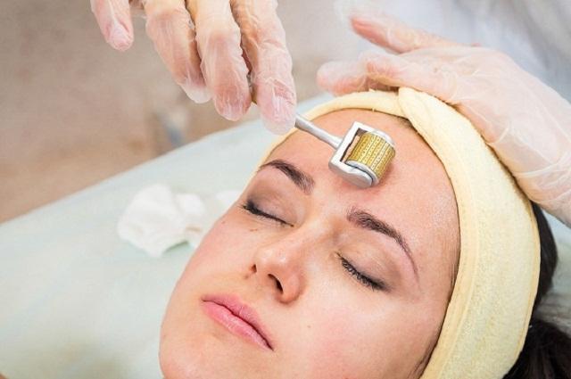 Công nghệ lăn kim trị mụn đầu đen