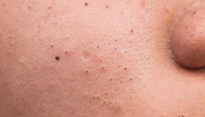 Biểu hiện của mụn đầu đen trên da