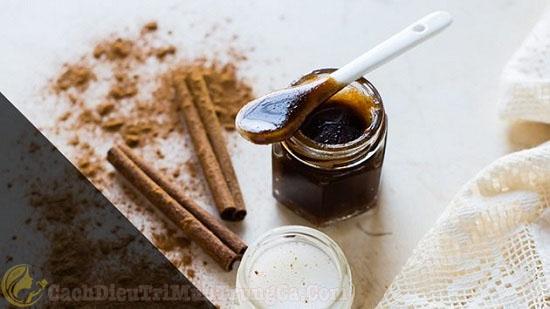 Trị mụn bọc ở cằm bằng bột quế và mật ong