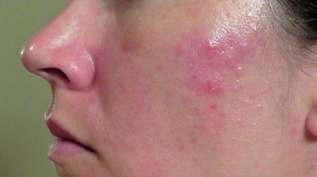 Làn da dầu không chỉ gây ra hiện tượng bóng nhờn, lỗ chân lông to mà còn là môi trường thuận lợi cho mụn phát triển