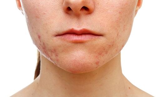 Sẹo thâm trên da mặt
