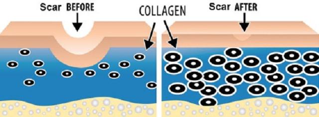 Công nghệ xoá sẹo Phi kim tế bào gốc đa tầng độc quyền tại  Favina Clinics & Beauty Spa có gì đặc biệt?