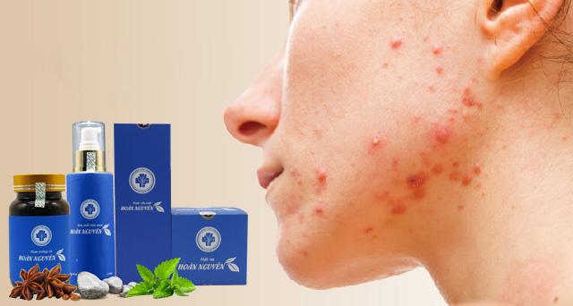 Bộ sản phẩm Hoàn Nguyên điều trị mụn viêm có hiệu quả không?