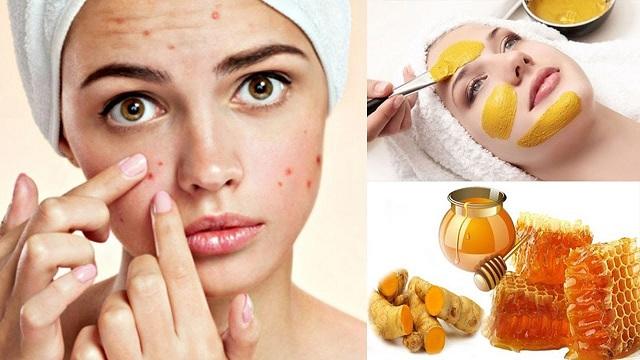 Mặc dù áp dụng nhiều loại mặt nạ trị mụn song vẫn không thể loại bỏ được mụn bọc cứng đầu