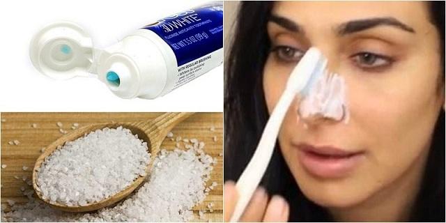 Mẹo trị mụn đầu đen tại nhà bằng kem đánh răng được nhiều người lựa chọn