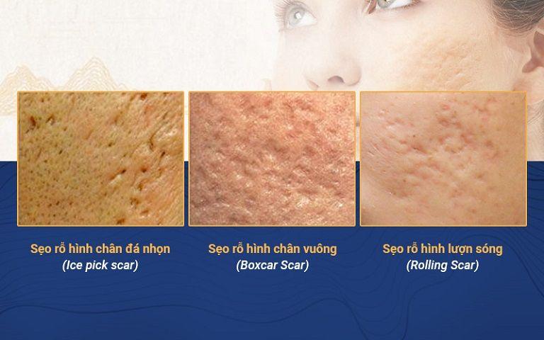 Sẹo rỗ có nhiều loại và cần được điều trị đúng cách mới mang lại hiệu quả tốt