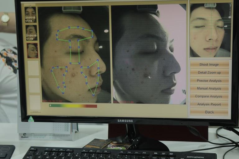 Hiếu được bác sĩ Nhuần thăm khám và tư vấn về tình trạng, phương pháp điều trị