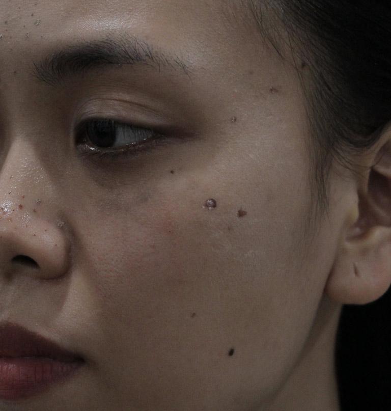 Dù đã áp dụng nhiều cách khác nhau nhưng mụn trên da chị Trang vẫn không thuyên giảm