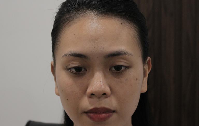 Làn da kém sắc của chị Trang do mụn trứng cá tấn công